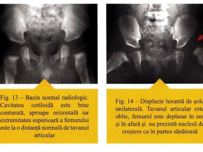 """Displazie luxata de sold. SUrsa """"Patologia ortopedica a copilului pana la varsta de sase ani"""", Autor Prof. Dr. Mihai JIANU"""